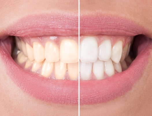 be you dental services whitening
